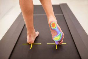 estudio de la marcha del pie